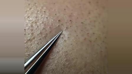 女人护肤的时候注意了, 这些是黑头粉刺, 不是毛