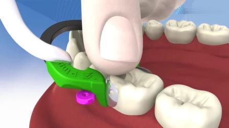 树脂补牙的全过程, 蛀牙就是这样补起来的!