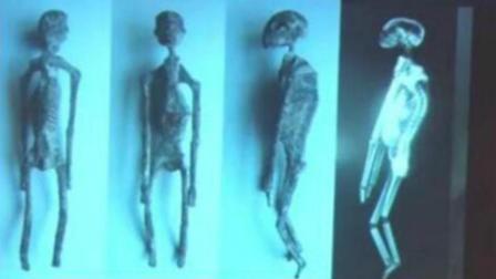 秘鲁出土千年三指干尸 遗骸并非人类