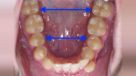 真实的牙齿矫正过程, 异位的牙齿怎么排列进去的!