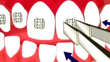 牙科动画视频解析拥挤的牙齿怎么矫正整齐的!