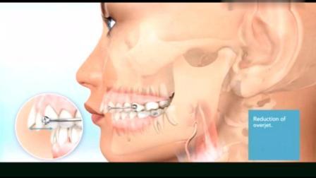 动画演示牙齿矫正改变脸型的全过程, 真的很神奇!