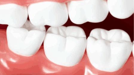 牙齿发黄不要着急, 学会这一招, 让你牙齿轻松变白!
