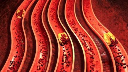 血管堵塞垃圾多, 常吃这6种食物, 溶解血栓血管通畅