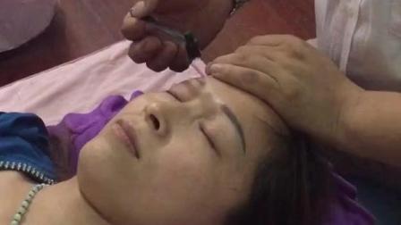 梅花针疗法治疗眼睛疾病, 飞蚊症, 假性近视眼, 青光眼, 白内障, 眼底黄斑等现场手法