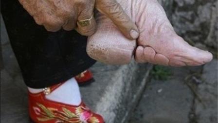 """中国最后的小脚部落, 正在消失, """"三寸金莲""""将"""