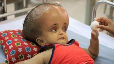 印度一女婴患上罕见疾病, 头部周长94厘米, 家人要放弃治疗