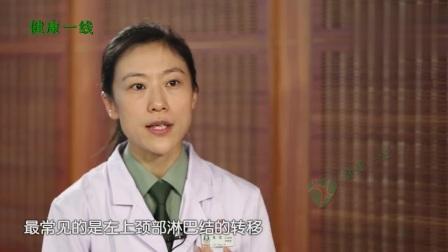 晚期胃癌的症状有哪些? 医生说这些典型表现都提示胃癌晚期了