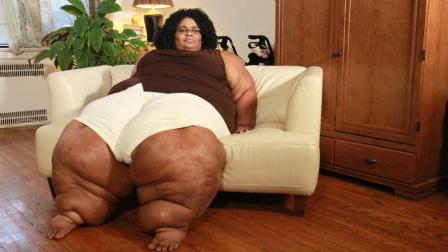 女子患脂肪水肿病, 双腿脂肪堆积, 腿围曾达1.2米, 男友不离不弃!