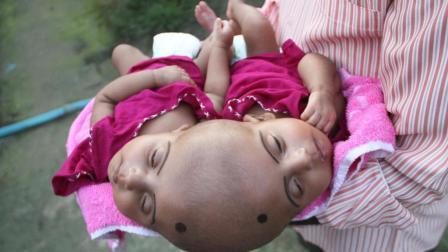 孟加拉出生罕见连体婴, 孕检时一切正常, 出生后