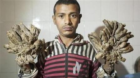 25岁男子患怪病, 双手长满树皮, 先后16次手术切除