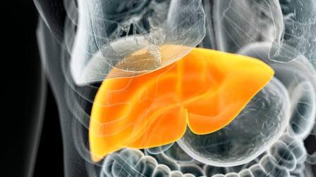 """得了脂肪肝别紧张, 这几种食物换着吃, 脂肪肝""""消得快""""!"""