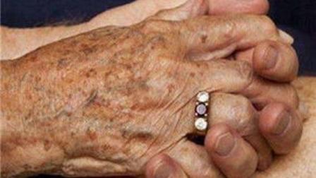 为什么大多数老年人都有老年斑? 抵抗老年斑, 这2种食物就可以