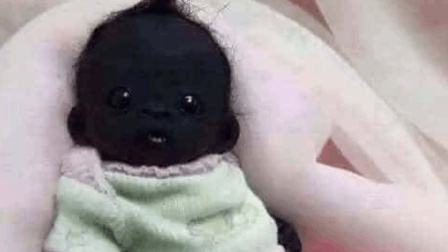 当年那个世界上最黑的婴儿, 现在怎么样了?