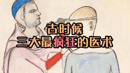 这三个古代疯狂医术, 头骨钻孔, 身体放血, 烙铁治病, 真skr厉害
