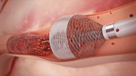 美国治疗血栓新技术, 清除血栓又快又彻底, 再不怕中风了!