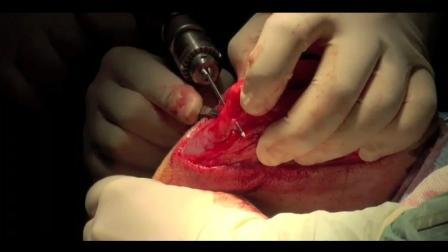 犬十字韧带修复+++++阿呆的宠物视频课