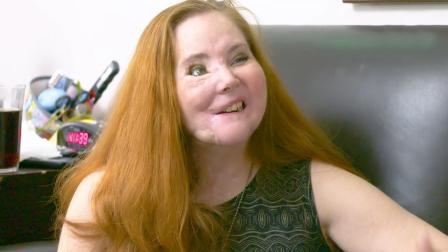 美国女子吞枪自杀未遂, 却摧毁了半张脸, 至今做49次面部重建手术!