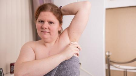 """女子身上有""""鱼腥味"""", 一天洗4次澡都洗不掉, 是患了罕见怪病!"""