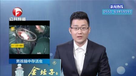 安徽: 13岁男孩脑中取出15公分长的活虫