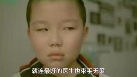 搞笑: 小孩有眼疾, 从小要斜眼看人, 高考的时候