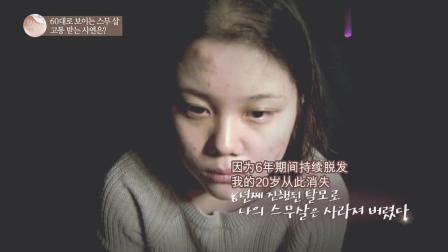 年纪二十岁的花季少女, 因为严重的脱发问题慢慢开始丧失自信心!