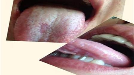 湿气重, 一身病! 经常揉这2个穴位, 健脾祛湿、调理脾胃!
