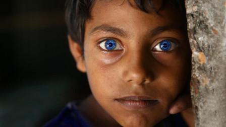 """""""变种人""""真的存在? 科学家研究发现, 蓝眼睛就是其中一种!"""