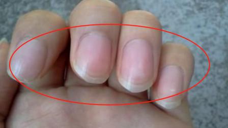 为什么有的人指甲上会有竖纹, 到底暗示着什么? 答案没你想的简单