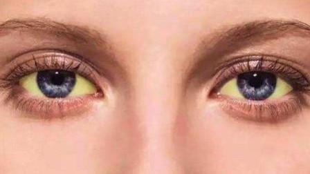 开眼角后有疤痕该怎么去除?