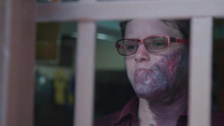 """女子脸上长着紫色胎记, 手术切除还会长出来, 被称""""紫色食人族""""!"""