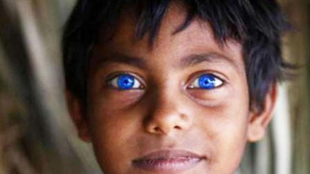 男童瞳孔发光像猫眼家长疏忽治疗导致孩子失明