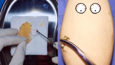 外科医生给水果做手术