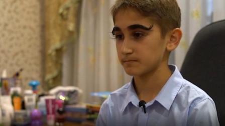 世界上睫毛最长的男孩,长度有4.3厘米,是普通人的4倍!