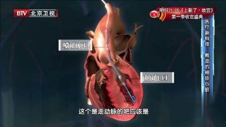 """""""袖珍心脏""""——医疗新科技,给心脏病患者带来生的希望"""