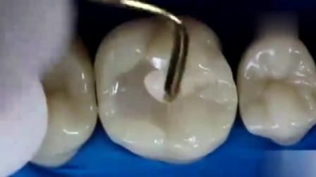 现在请看最详细补牙过程,牙齿健康要知道
