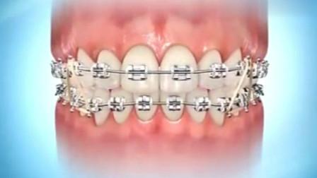 你知道牙套上的橡皮筋是如何起作用的?