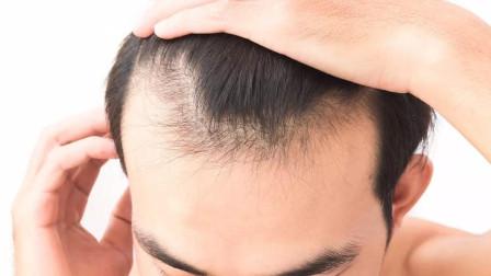 经常脱发别烦心!1个自制生发剂小方法,常用头发能悄悄浓密