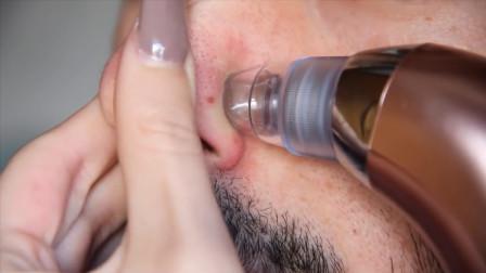 鼻子上的黑头太多?试试这款高压吸尘器,贼过瘾!