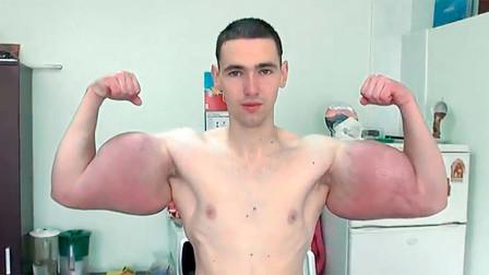 小伙为做肌肉男注射大量食用油,手臂粗61cm,中看不中用!