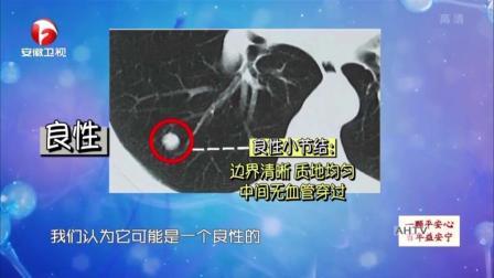 肺部小结节究竟是啥?与肺癌有何关系?权威专家一次给你讲清楚!