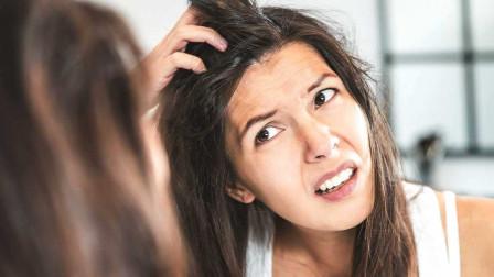 """头发容易出油,给头发喂点 """"药"""",轻松解决美"""