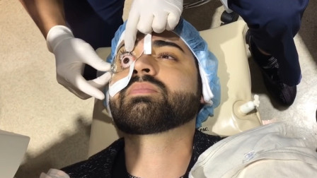 近视眼激光手术是怎么做的?3D模拟动画演示,看了你还敢做吗?