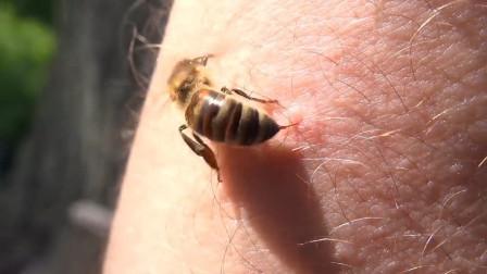 蜜蜂蛰人后为什么会死去?这个视频解开了我多年的疑惑