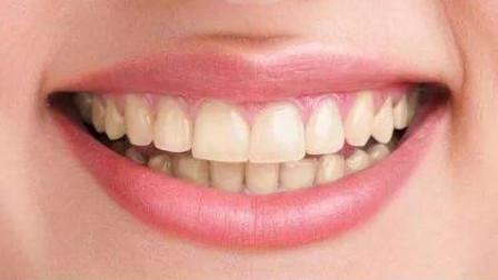 牙齿发黄怎么办?可能是你的姿势不对,学会这招轻松拥有大白牙