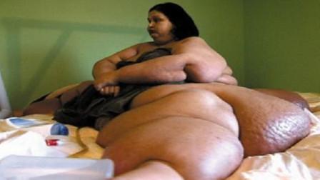 曾重达1088斤的女人,被丈夫抛弃后疯狂减掉800斤,如今变成美女!