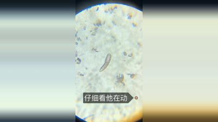 把螨虫放在显微镜下, 结果看到这一幕, 网友:好可怕!