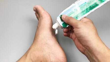 挤一点牙膏在脚上,解决了好多人的难言之隐,要是早点知道就好了