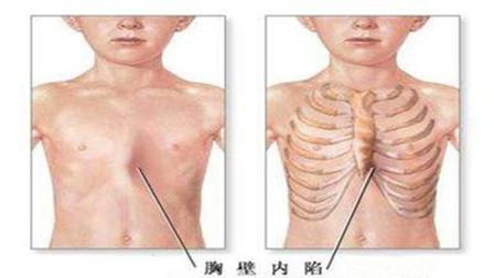 """胸骨凹陷形状像""""漏斗"""",何时是漏斗胸的矫正最佳时期?"""