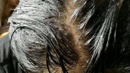 怎么样自家在家洗头就能白发变黑发,教你一招在家白发变黑发